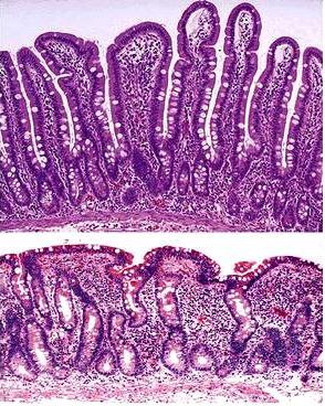 Biopsia vellosidades intestinales | Guiaceliacos